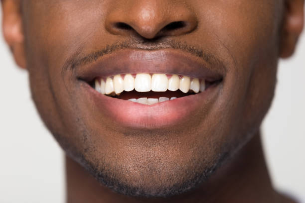 close up view of beaming orthodontic white wide male smile - mouth imagens e fotografias de stock