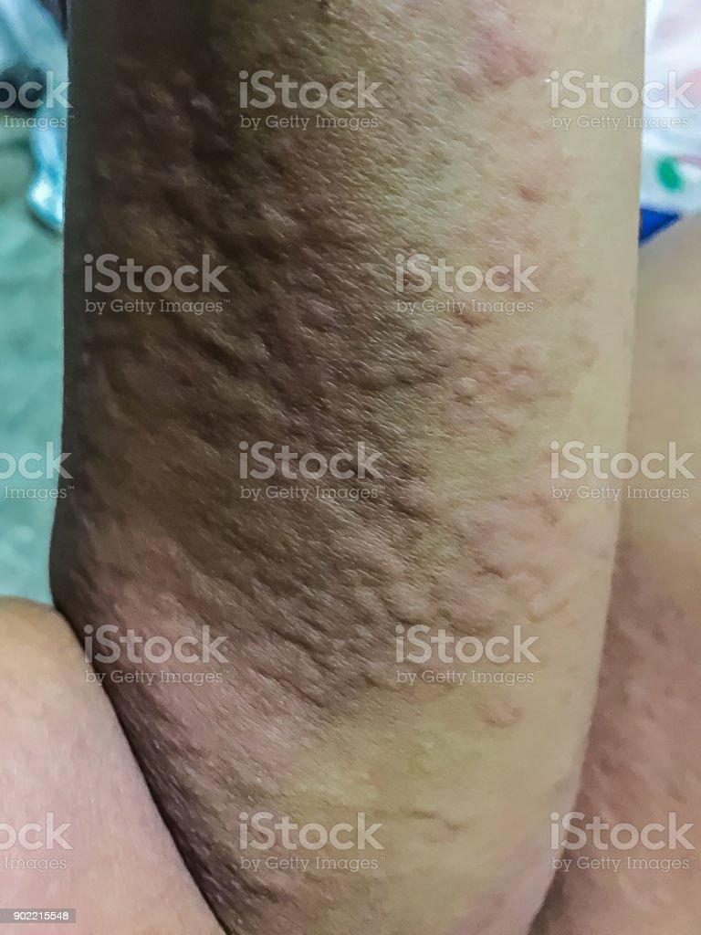 allergiska utslag bilder