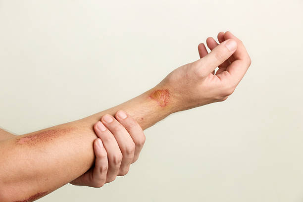 Close up view of nasty wounds on man's arm stock photo