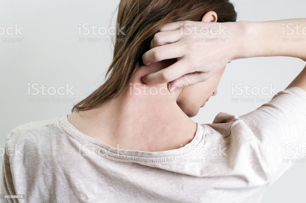 Close up view of woman scratching her neck. stock photo