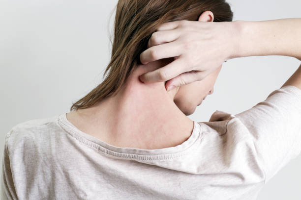 Close up view of woman scratching her neck. Close up view of woman scratching her neck. psoriasis stock pictures, royalty-free photos & images