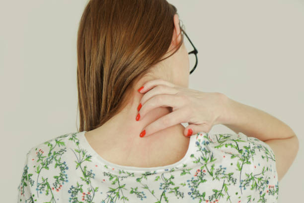 bouchent la vue de femme se gratter le cou. - psoriasis photos et images de collection