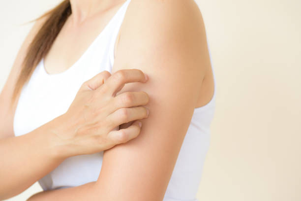 close up woman arm scratch the itch by hand at home. healthcare and medical concept. - scratching stock photos and pictures