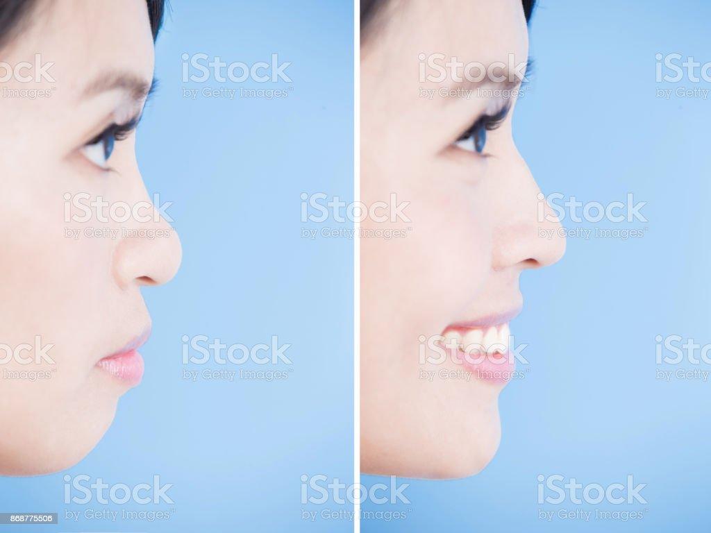 close up woman face stock photo