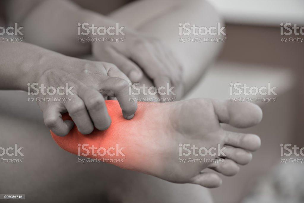 Nahaufnahme Frau Hand kratzen den Juckreiz von Hand zu Hause. Gesundheitswesen und medizinische Konzept. – Foto