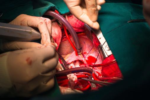 close ventricular septal defect via tricuspid valve