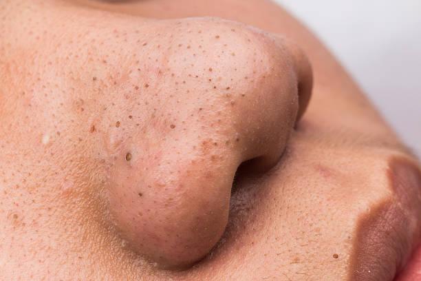 Geschlossen bis der Hautfleck Mitessern auf Nase und Mund – Foto