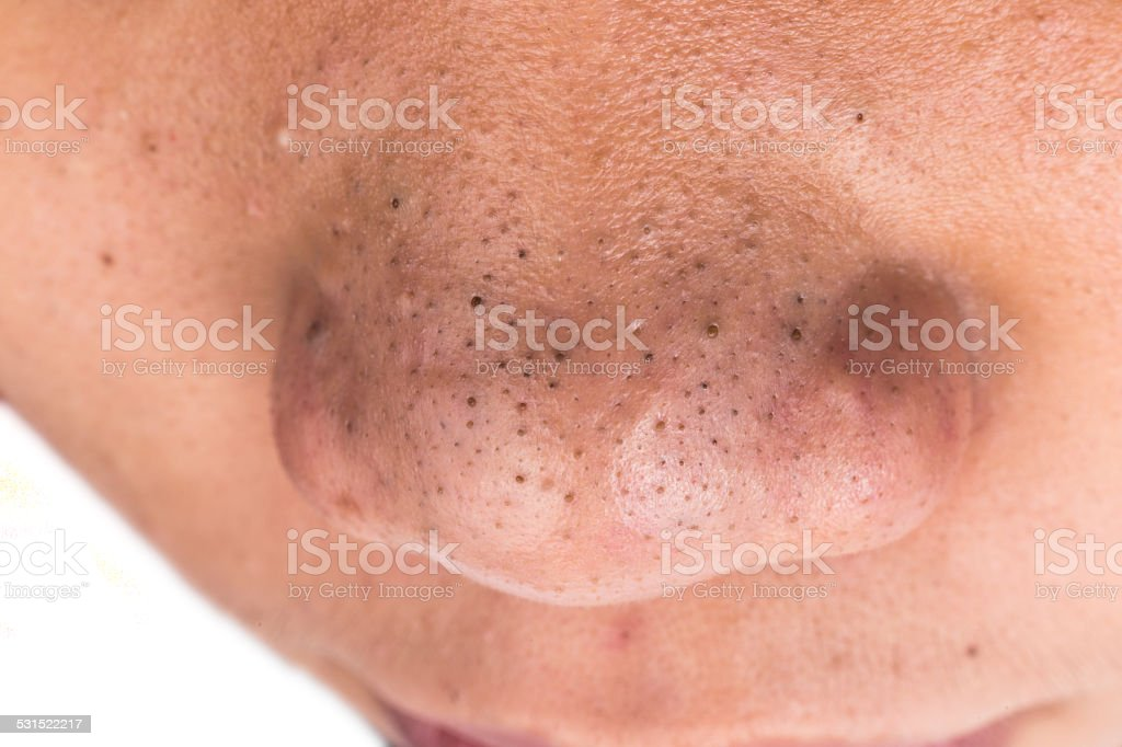 Closed Up Of Pimple Blackheads On The Nose Stock Photo