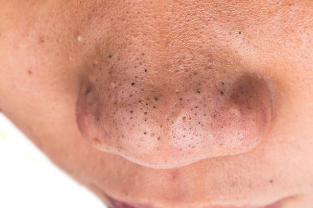 Geschlossen bis der Hautfleck Mitessern on the nose – Foto