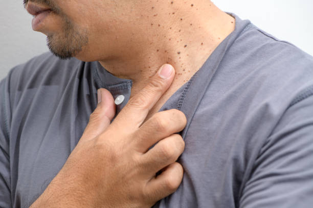 Closed up the Skin Tags or Acrochordon on neck man on white background. stock photo