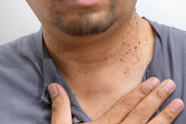 Closed up the Skin Tags or Acrochordon on neck man stock photo