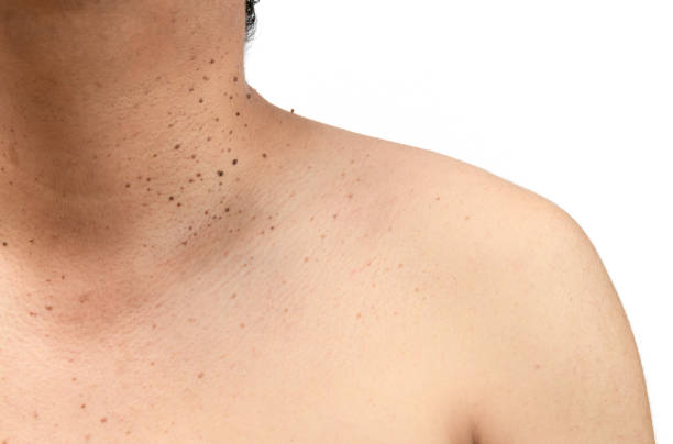 Closed up the skin tags or Seborrheic Keratosis on neck Closed up the skin tags or Seborrheic Keratosis on neck man isolated on white background.Health care concept wart stock pictures, royalty-free photos & images