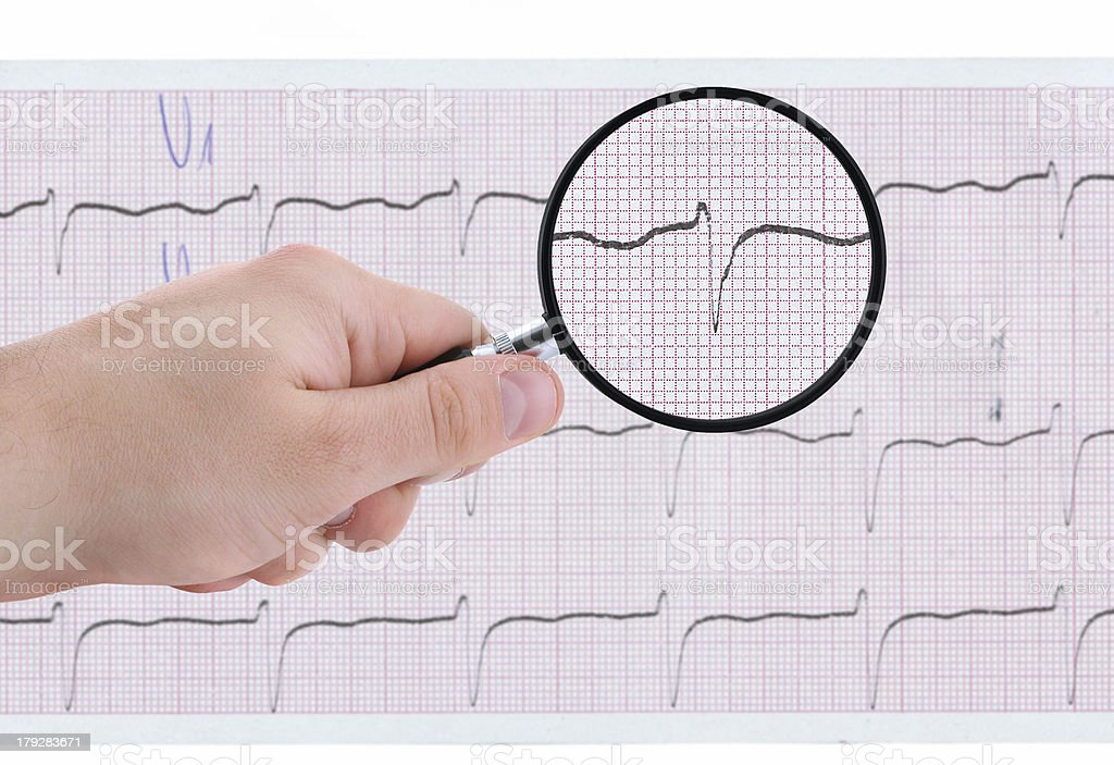 closer look at ECG printout royalty-free stock photo