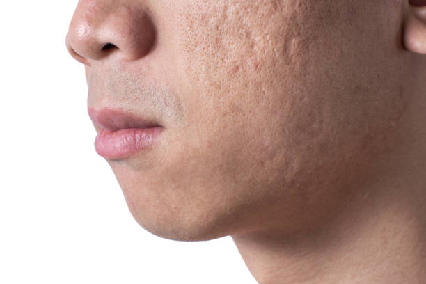 Close-up acne and scars on asian man face Close-up acne and scars on asian man face, isolated white background scar stock pictures, royalty-free photos & images