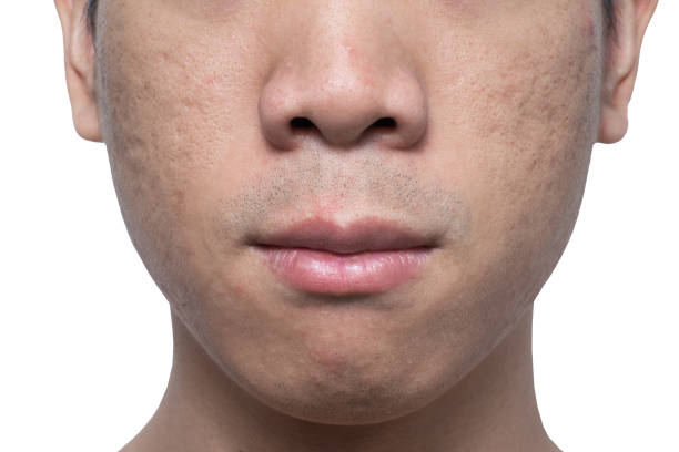Close-up acne and scars on asian man face stock photo