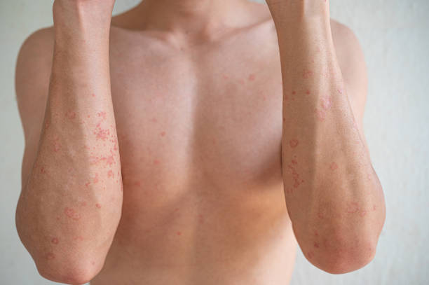 Closeup Asian man arm skin Atopic dermatitis dry skin stock photo