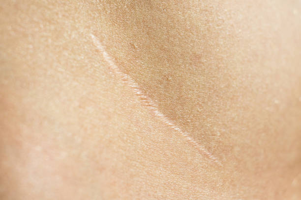 Close-up, beautiful surgical scar on the skin after appendectomy stock photo