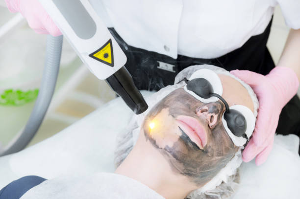 Close-up carbon face peeling procedure. Laser pulses clean skin of the face. Hardware cosmetology treatment. Process of photothermolysis, warming the skin, laser carbon peeling. Facial skin rejuvenation stock photo