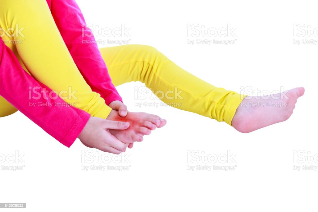 Closeup child's leg injured at instep of foot. Isolated on white background. stock photo