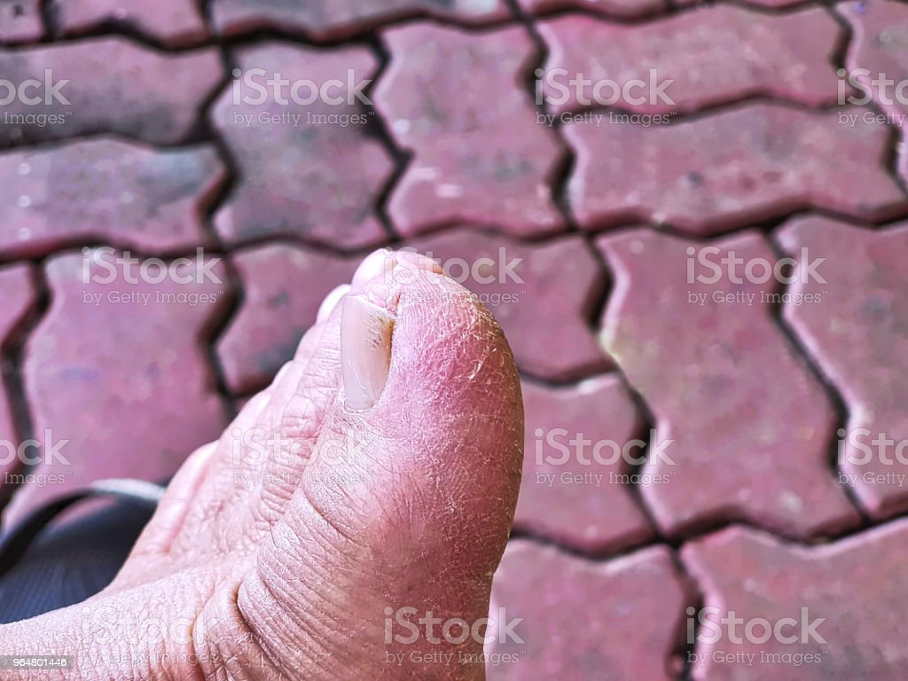 Close-up Cracked Skin of a Toe royalty-free stock photo