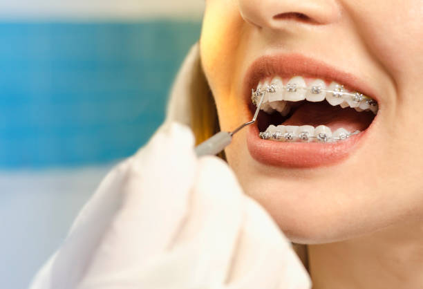 Closeup dental braces checkup Closeup dental braces checkup , perfect white teeth with dental braces woman in half smile dental health stock pictures, royalty-free photos & images