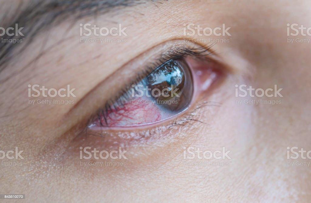 Blod i ögat