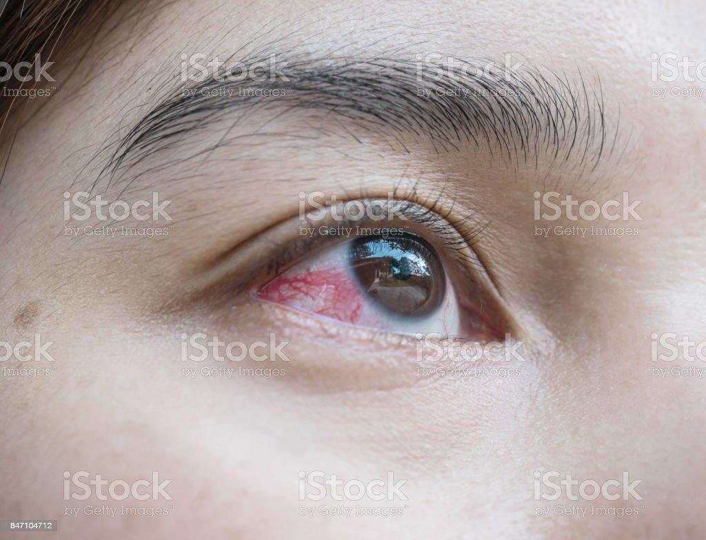 Closeup eye of asian woman with broken capillaries in the eye stock photo
