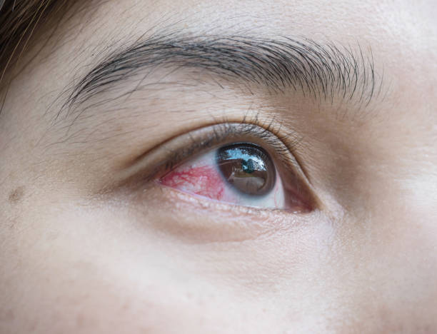Closeup eye of asian woman with broken capillaries in the eye stock photo
