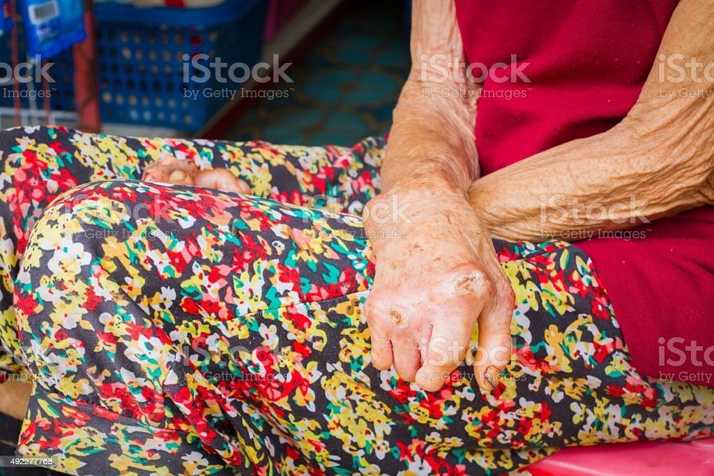 closeup hands of old woman suffering from leprosy stock photo