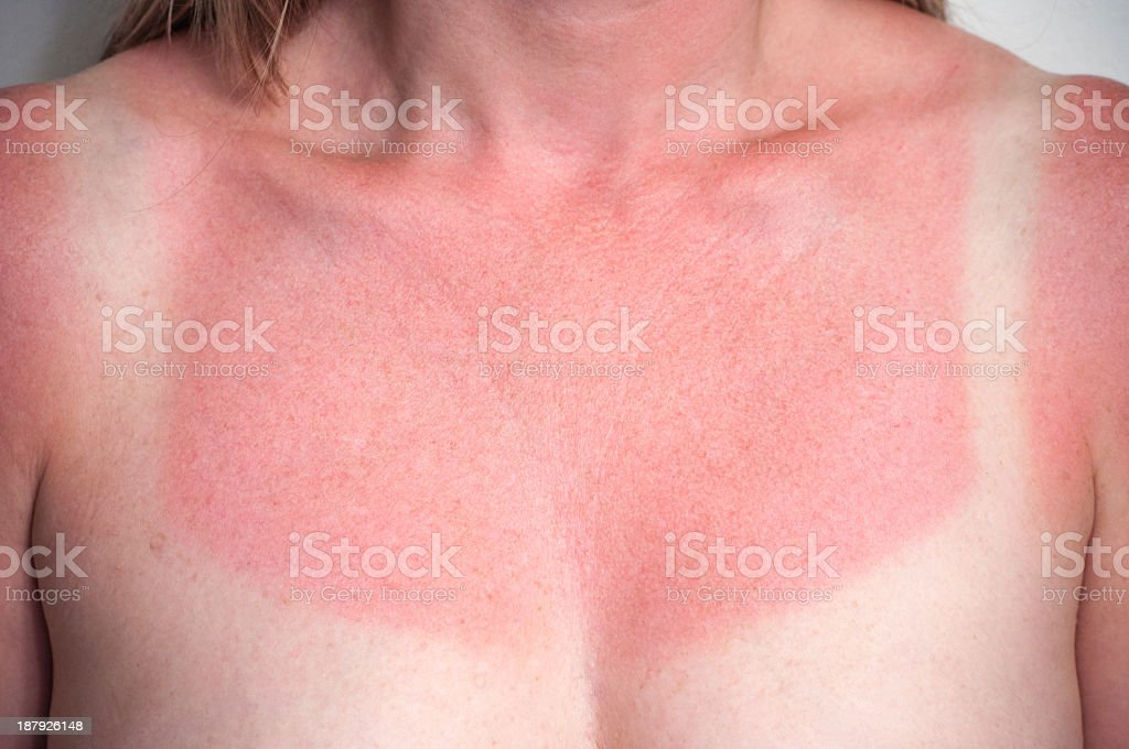 Closeup image of a white and red sunburned female chest - Royalty-free Adult Stock Photo