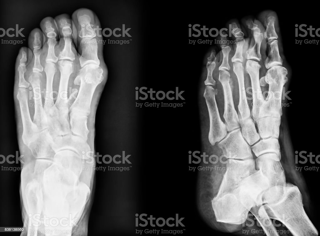 Closeup image of classic xray image of feet. Black and white. stock photo