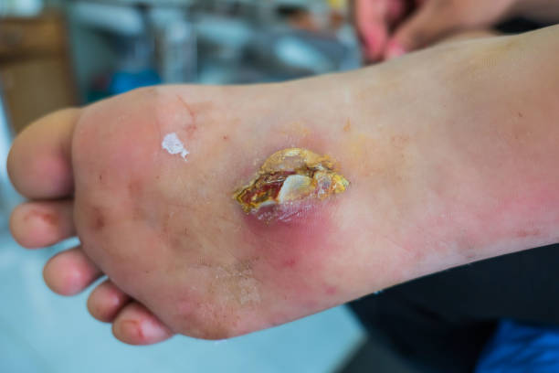 Best Infected Wound Stock Photos, Pictures & Royalty-Free