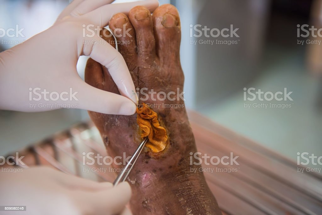 closeup  infection wound in the foot of patients stock photo