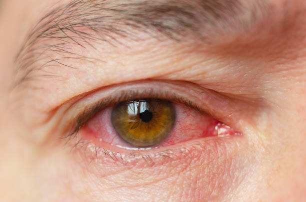 closeup irritated infected red bloodshot eyes, conjunctivitis - infiammazione foto e immagini stock