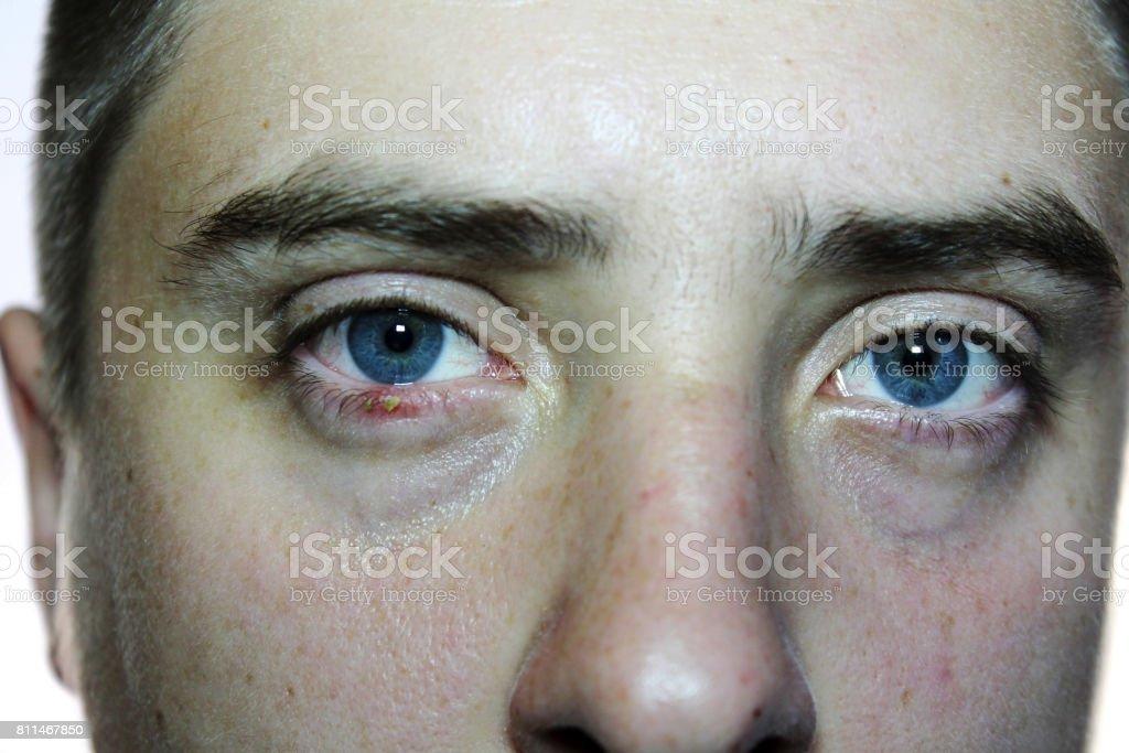 Close-up man's eye. Ophthalmologic disease hordeolum eye. Doctor ophthalmologist examines purulent inflammation of the eyelid. Eyelid close-up. Acute purulent inflammation of the hair follicle stock photo