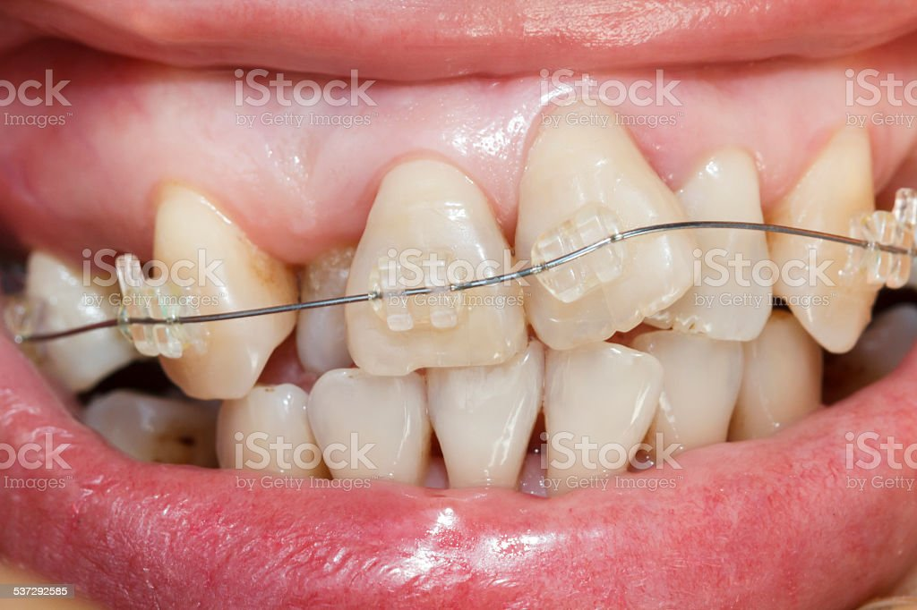 Nahaufnahme Mündung des crooked Zähne mit Zahnspange. - Lizenzfrei Verbogen Stock-Foto