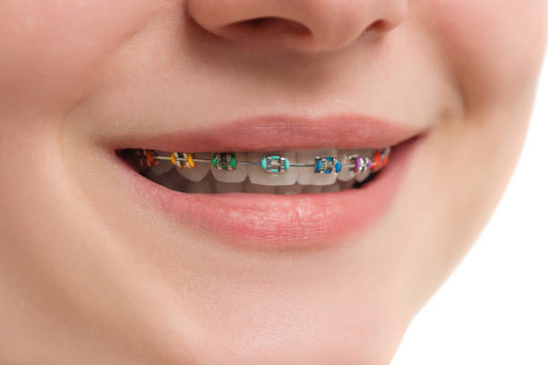 Closeup multicolored Braces on Teeth. Beautiful Female Smile with Self-ligating Braces. Orthodontic Treatment. stock photo