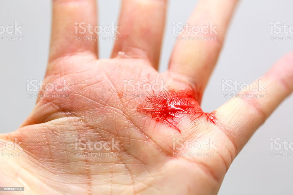 Close-up of a Cut Hand stock photo