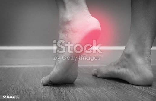 istock Closeup of a female foot heel pain with red spot, plantar fasciitis 881003152