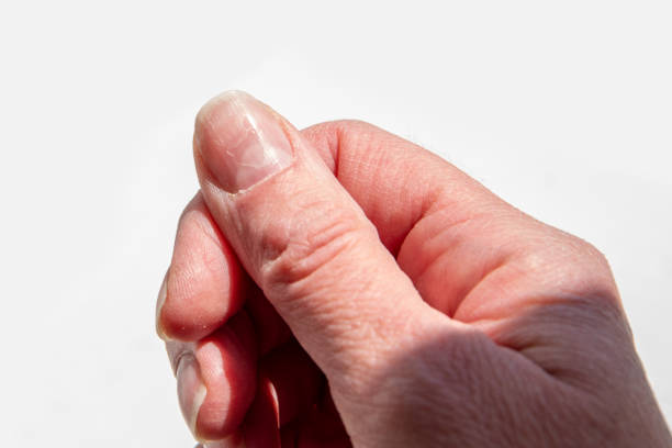close-up of a female thumb with a soft fossa on a nail, an overgrown cuticle, a peeling nail layer, poor manicure - cuticle stock pictures, royalty-free photos & images