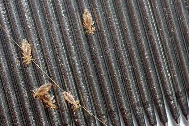 kopflaus schädlingsbefall - kopfläuse was tun stock-fotos und bilder