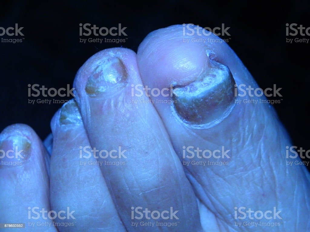 Closeup Of A Human Foot With Toenail Fungus Stock Photo & More ...