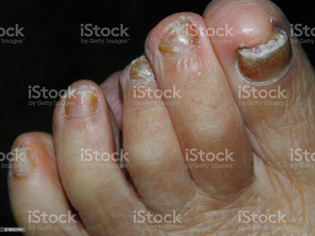 Image result for Fight Toenail Fungus istock