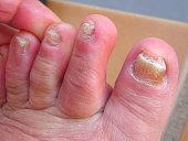 fungus nail