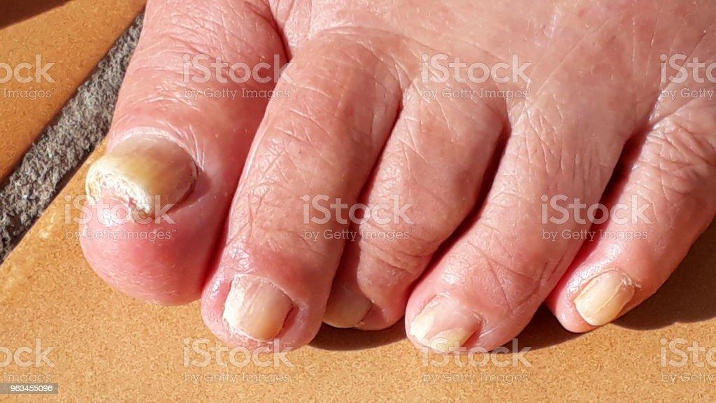 Zbliżenie ludzkiej stopy z paznokieć grzyb - Zbiór zdjęć royalty-free (Badanie lekarskie)