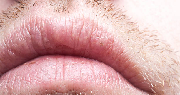 Close-up of a man's dry, chapped lips with growing moustache stock photo