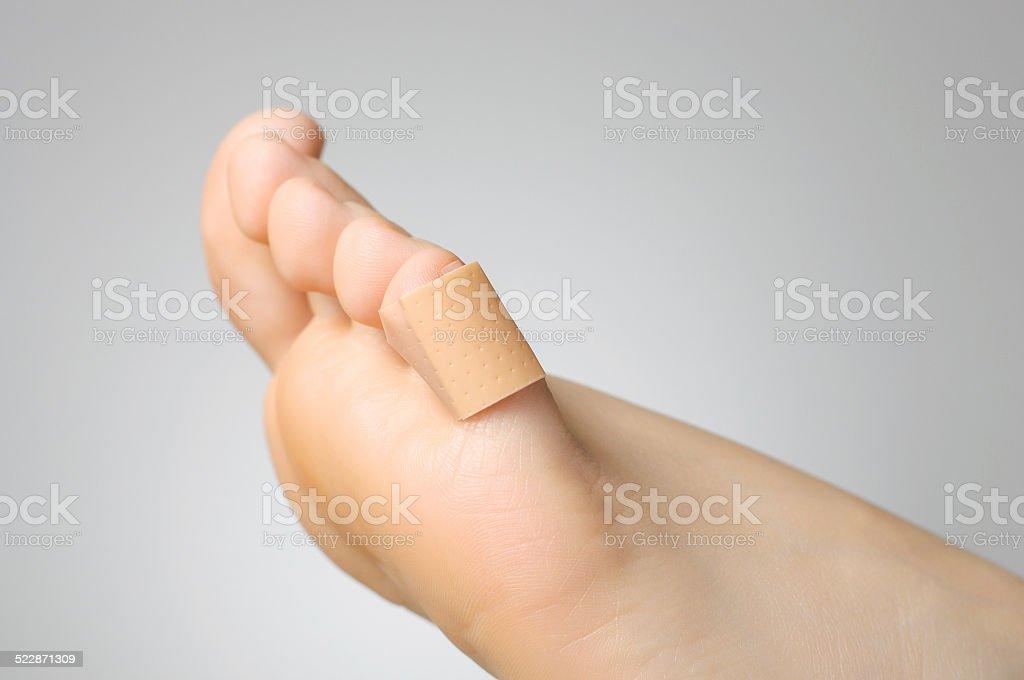 Nahaufnahme von einem Gips auf den weiblichen Fuß – Foto