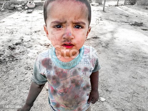 istock closeup of a poor staring hungry orphan boy in a refugee camp with sad expression on his face and his face and clothes are dirty and his eyes are full of pain 1167021664