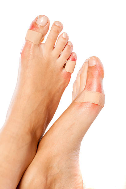 Closeup of a woman's toes with a blister plaster on stock photo