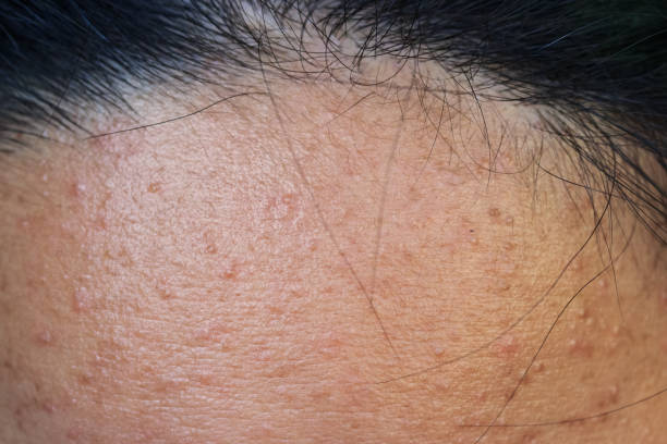 Close-up of acne on the skin, Acne on the face caused by Hormone, The scars, wrinkle and acne inflammation on the face skin stock photo